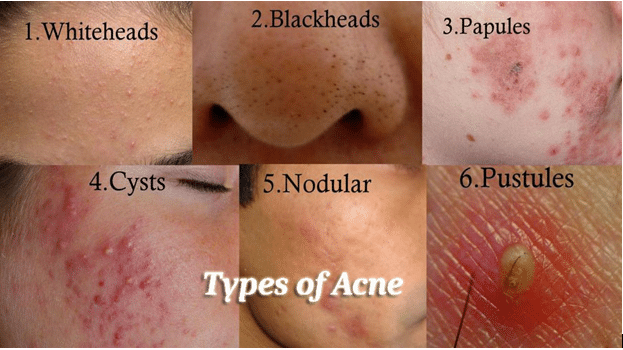 Types of acne pictures